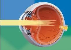 Новокузнецк операция по восстановлению зрения