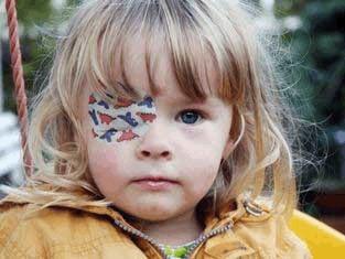 С каким зрением дают инвалидность при минусе