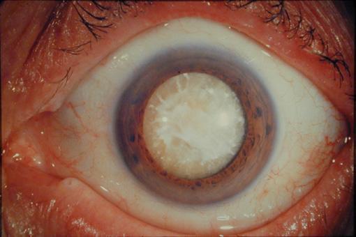 Зрелая катаракта