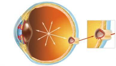 Хирургическое лечение больных катарактой