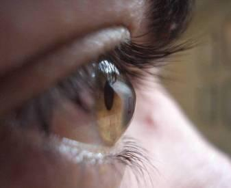Глаз у больного кератоконуса