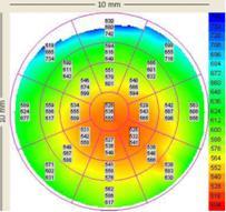 Пахиметрия роговицы в оптической и параоптических зонах