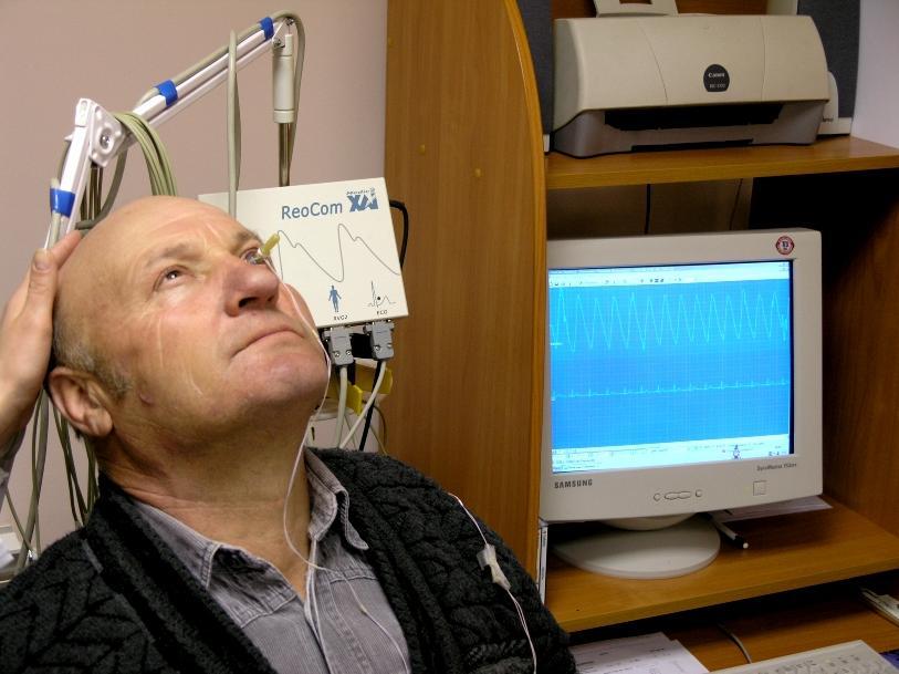Реофталбмологическая проба