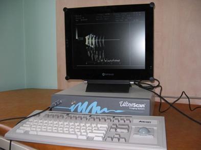 А-сканирования