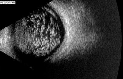 Астероидный гиалоз