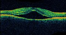 ОСТ – скопление жидкости между слоями нейро- и пигментного эпителия