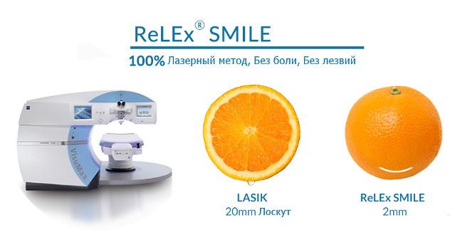 ReLEx SMILE