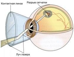 laser-koagulyaciya