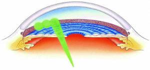 lasernaya-trabiculoplastica