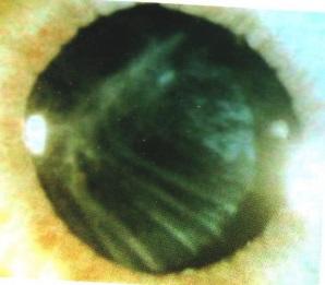 vtorichnaya-plencatayz-katarakta